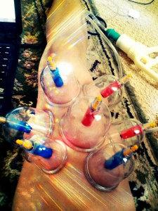 Cupping the rectus femoris to help with lower back pain associated with anterior pelvic tilts.